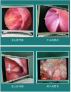 我院普外科腹股沟疝腹腔镜下微创治疗