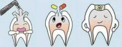 儿童的乳牙,有做根管治疗的必要吗?